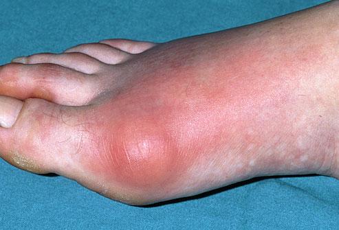 gout on leg